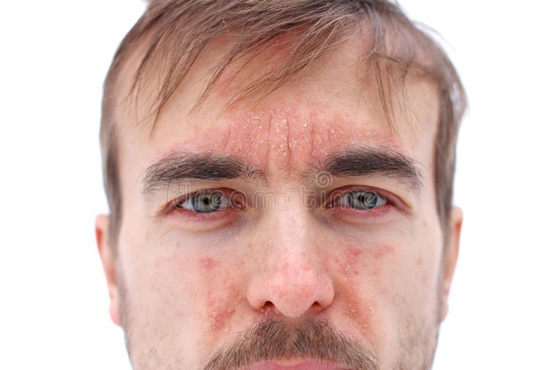 Head of sick man with red allergic reaction on facial skin, redness and peeling psoriasis on nose, forehead and cheeks, seasonal. Skin problem, close-up, white stock photos