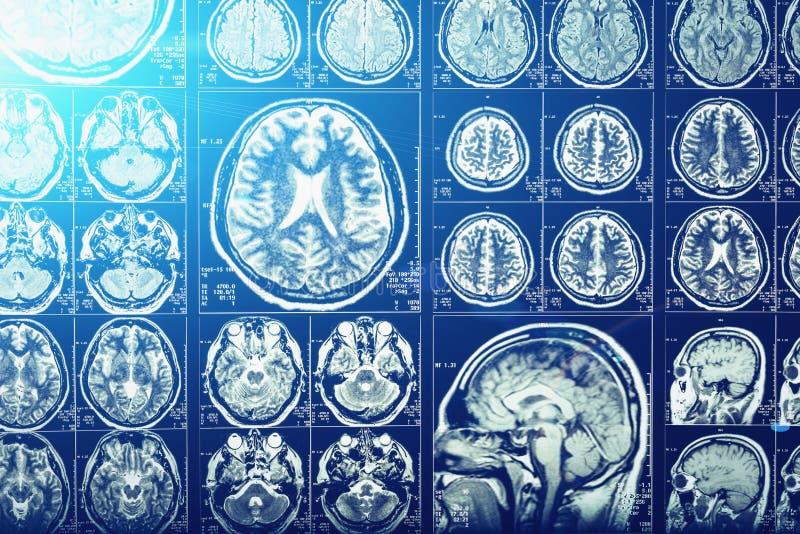 Head tomography för dator, röntgenstrålehjärna eller scullbildläsningsbild, blå ljus effekt, neurologi royaltyfri fotografi