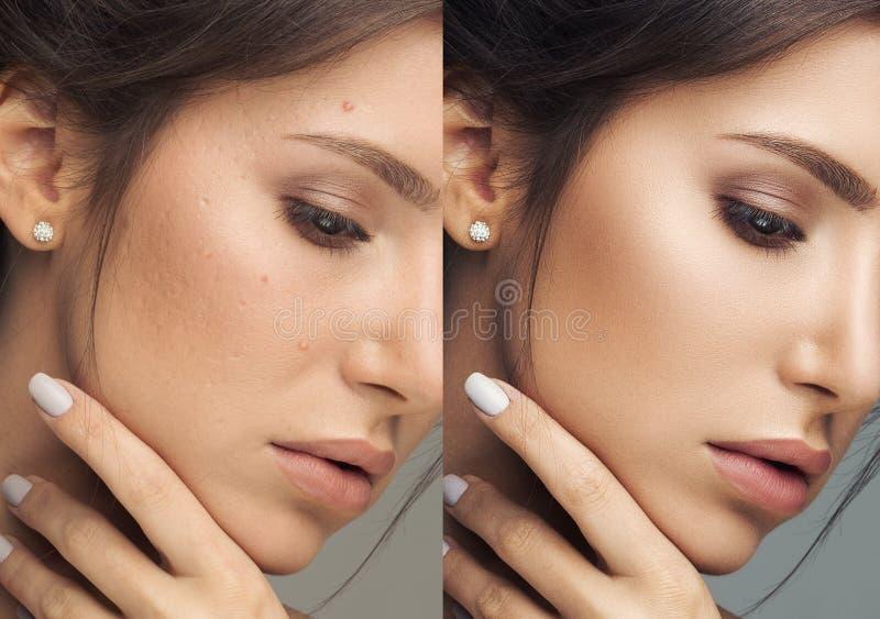 Headshot piękna kobieta z perfect i trądzika skórą po narty obrazy royalty free