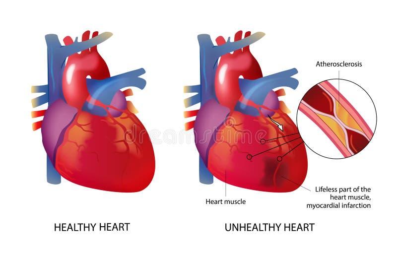 Healhty и нездоровое сердце иллюстрация штока