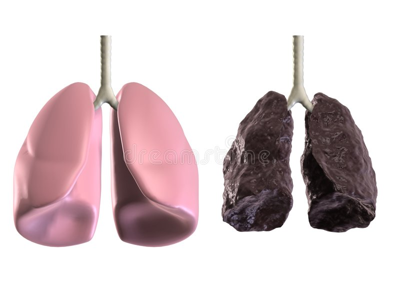 Health and bad lungss stock illustration