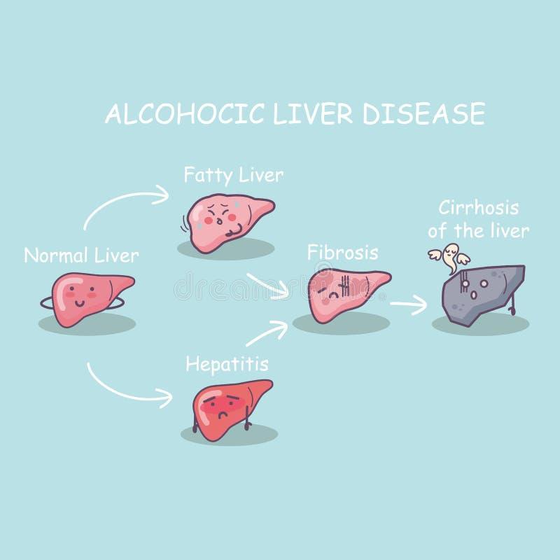 Health liver vs cirrhosis liver. The stage of Health liver vs cirrhosis liver, great for health care concept vector illustration