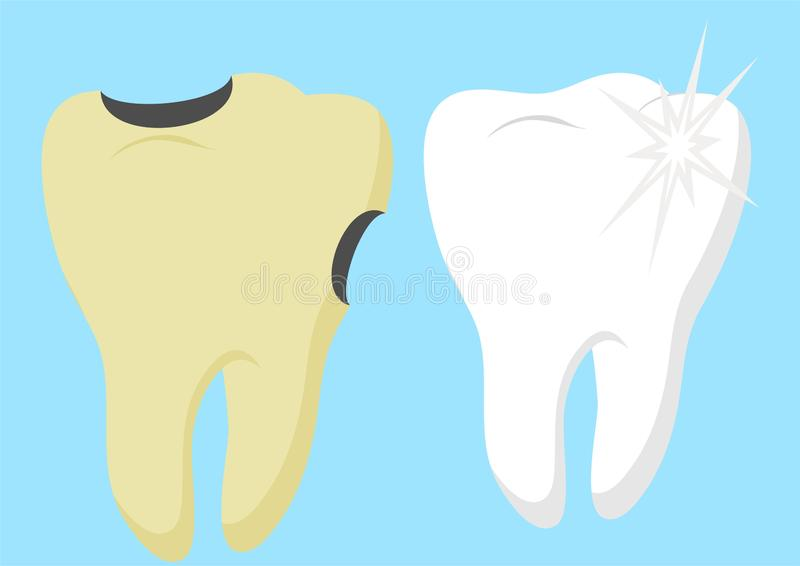 Healthy cartoon tooth and decayed tooth with. Dental care and hygiene infographics. Good and bad for your teeth. Vector stock illustration