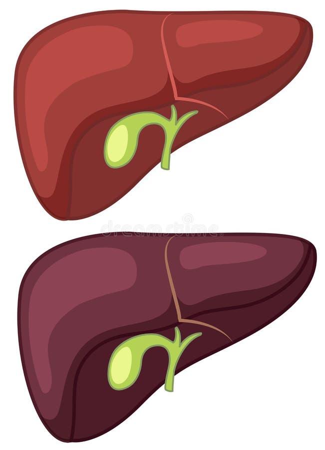 Healthy and Cirrhosis Liver. Illustration stock illustration