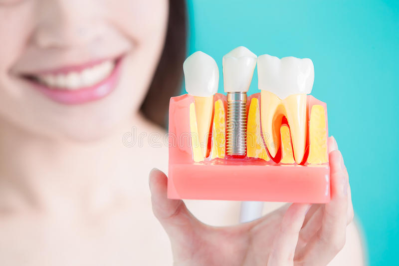 Healthy dental concept. Woman take tooth implant false tooth on green background royalty free stock images