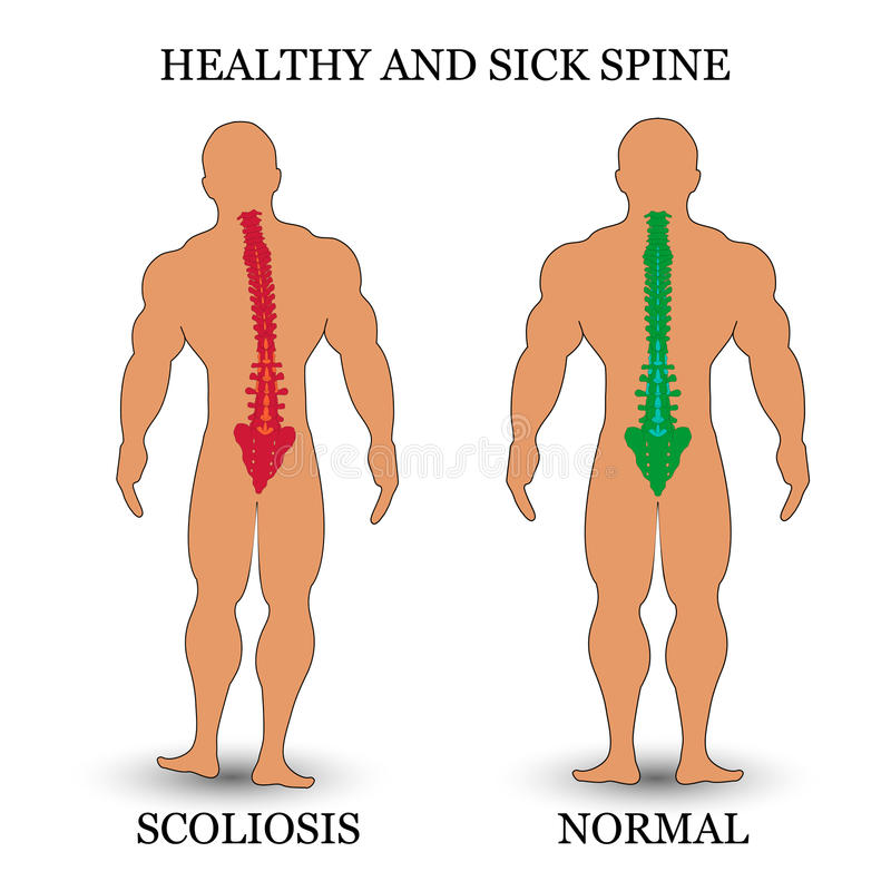 Healthy and diseased spine, scoliosis and normal condition, a medical training poster, vector illustration. royalty free illustration