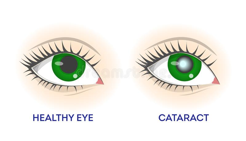 Healthy eye and cataract. Retina disease, problems with vision. Ophthalmology illness. Isolated vector illustration in cartoon style royalty free illustration