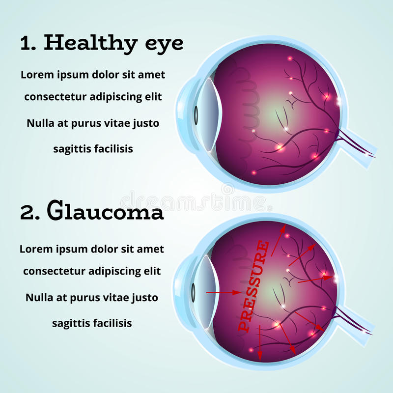 Healthy Eye Glaucoma vector illustration