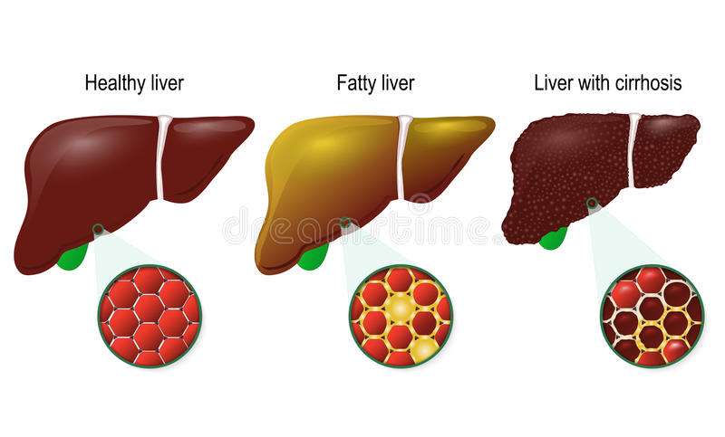 Healthy, fatty and cirrhosis of the liver. Liver disease. Healthy, fatty and cirrhosis of the liver. liver cells hepatocyte stock illustration