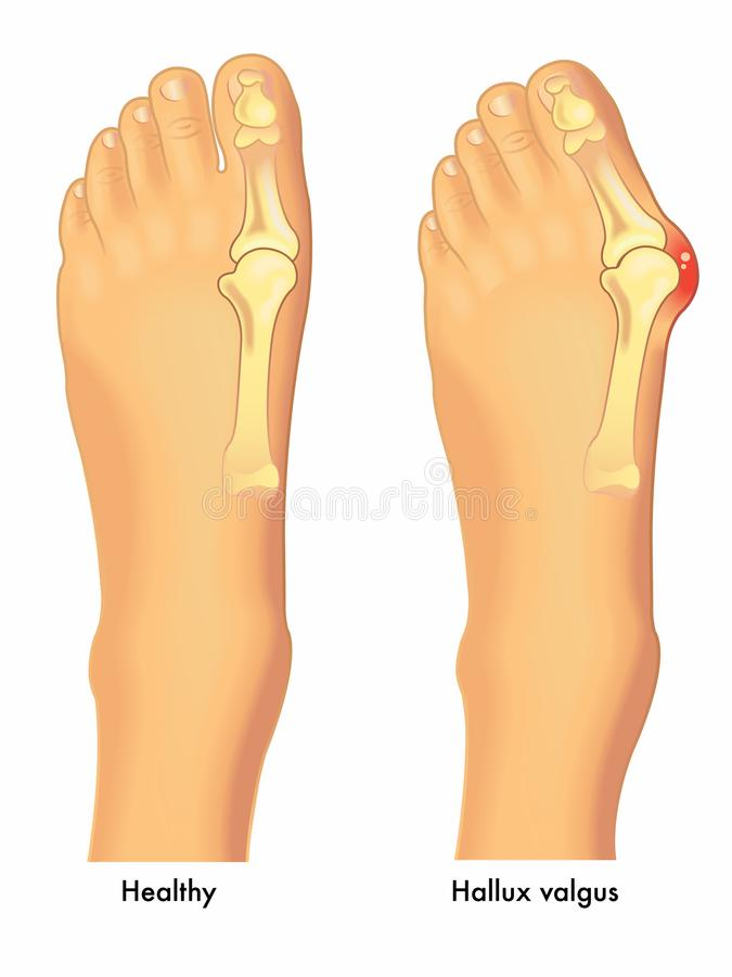 Healthy foot and foot with bunion royalty free illustration