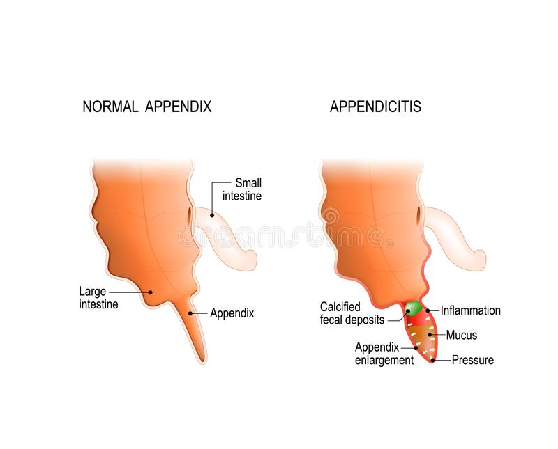 Healthy And Inflamed Appendix. Stock Vector - Illustration of body ...
