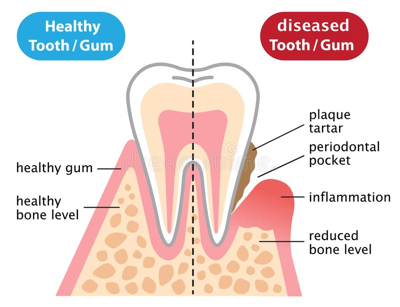 Healthy and inflammatory diseased gum. dental and health care concept. Human teeth of gum disease and normal teeth illustration isolated on white background vector illustration