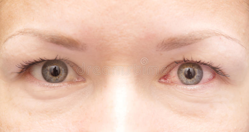 Healthy and irritated eye. Close up of healthy and irritated red eye stock photo