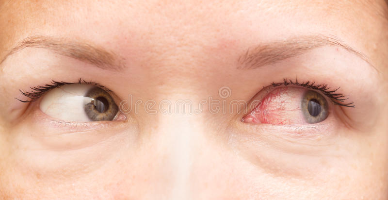 Healthy and irritated eye. Close up of healthy and irritated red eyes stock photography