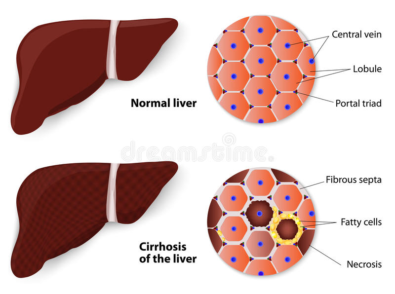 Healthy Liver and Cirrhosis. Cirrhosis of the liver and Normal liver. Structure of the liver. vector diagram vector illustration