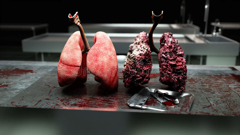 Healthy lungs and disease lungs on morgue table. Autopsy medical concept. Cancer and smoking problem. royalty free stock photo
