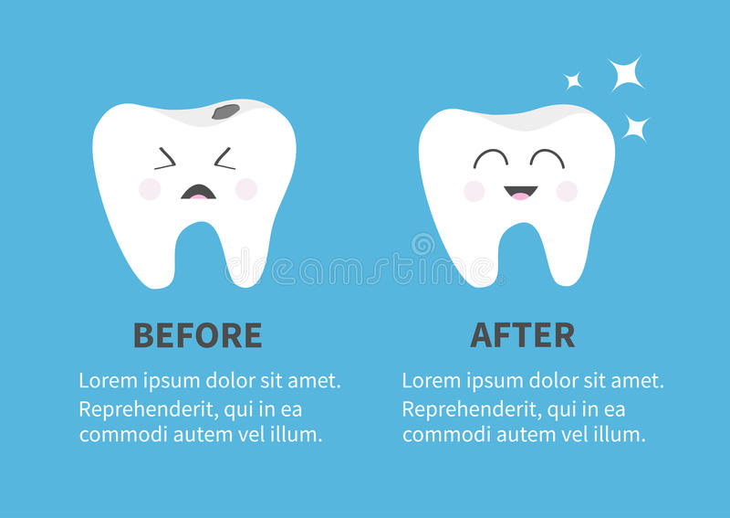 Healthy smiling tooth icon. Shining star. Crying bad ill teeth with caries. Before after Infographic Template with text. Cute char. Acter. Oral dental hygiene stock illustration