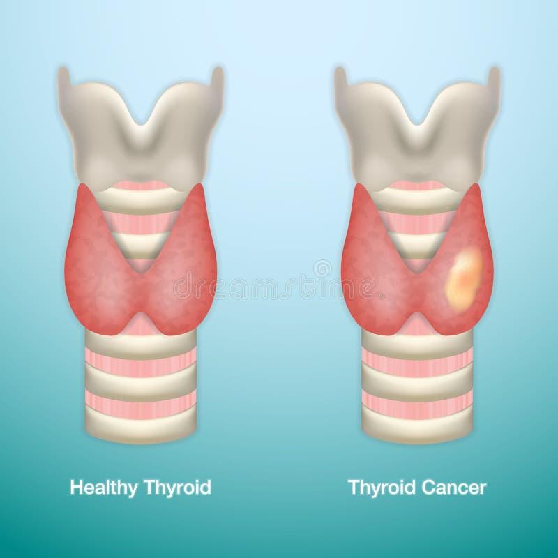 Healthy Thyroid and Thyroid Cancer. EPS10 Vector Illustration. royalty free illustration