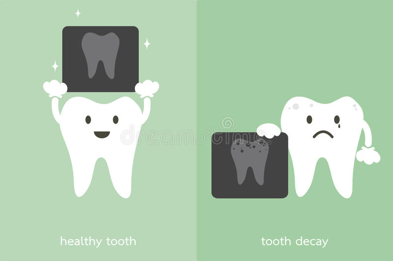 Healthy tooth and tooth decay holding dental x-ray film. Teeth cartoon vector, healthy tooth and tooth decay holding dental x-ray film vector illustration