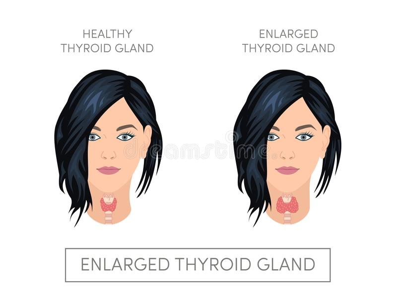 how to tell if thyroid is enlarged women