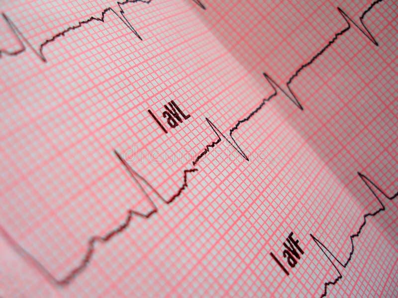 Download Heart analysis stock photo. Image of plot, scheme, chart - 669092