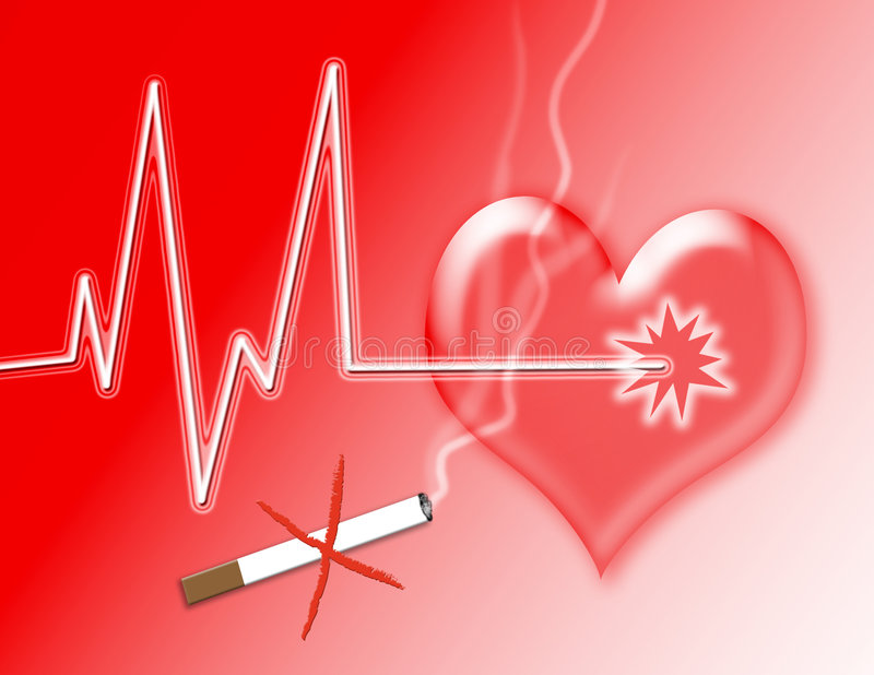 Download Heart Attack stock illustration. Image of electrocardiogram - 4222811