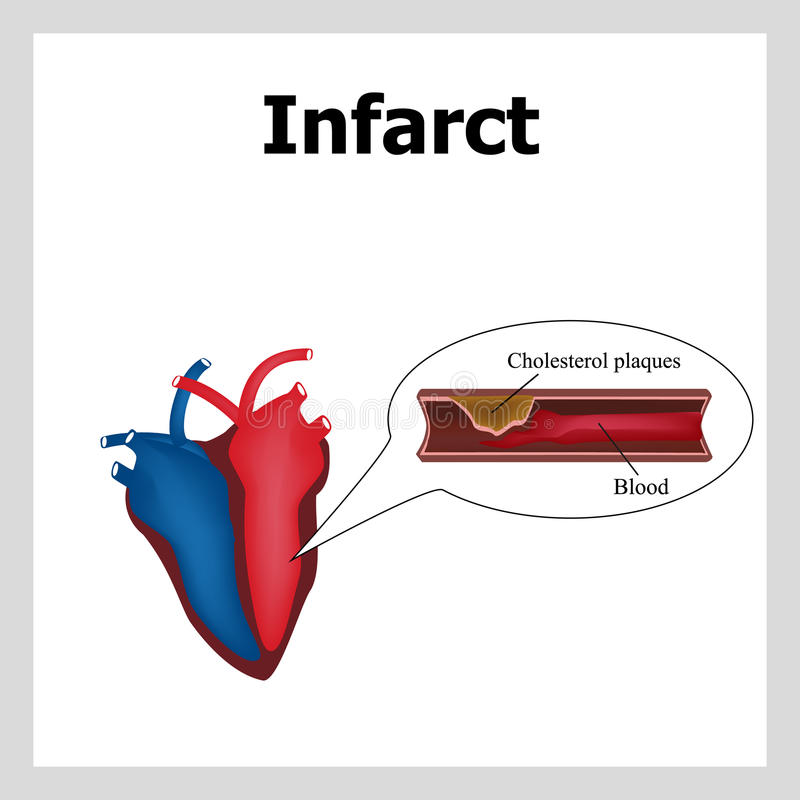 Heart attack. Atherosclerosis. Thrombus. Artery-clogging cholesterol. Cholesterol plaques. Infographics. Vector royalty free illustration