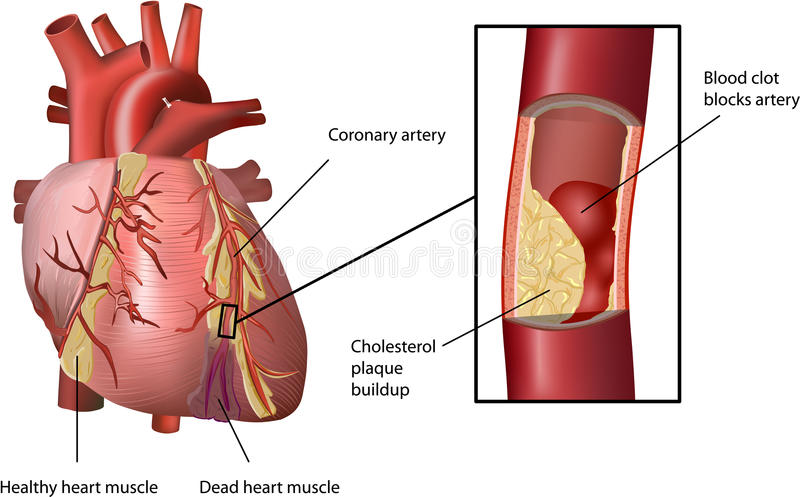 Heart Attack Caused by Cholesterol vector illustration