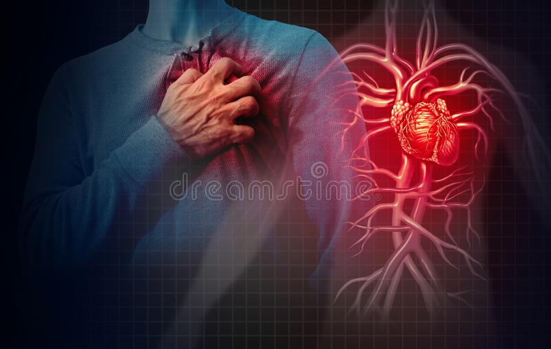 Heart Attack Concept royalty free illustration