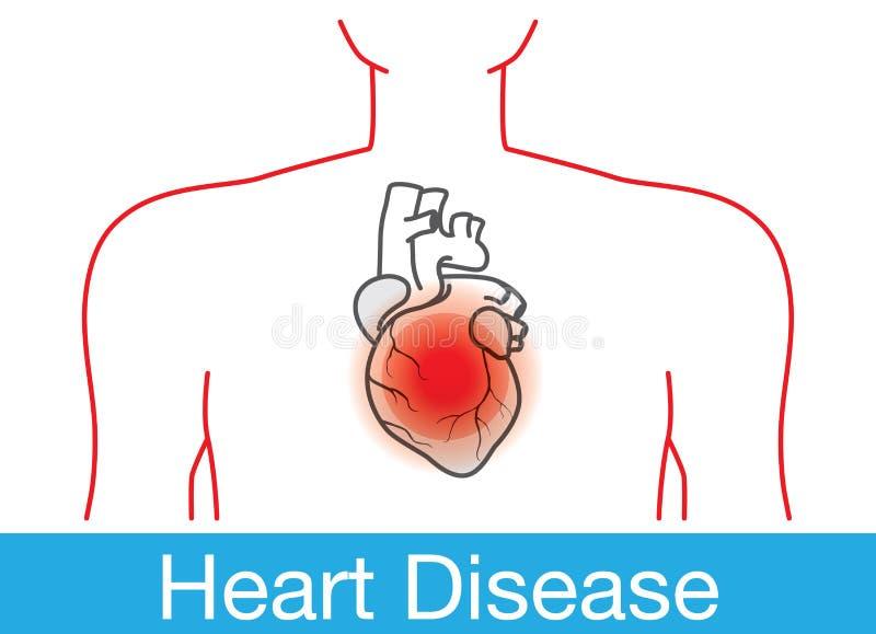 Heart attack happens stock vector illustration of diagram 64054641 download heart attack happens stock vector illustration of diagram 64054641 ccuart Choice Image