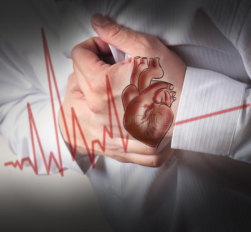 Heart Attack and heart beats cardiogram background royalty free stock photos