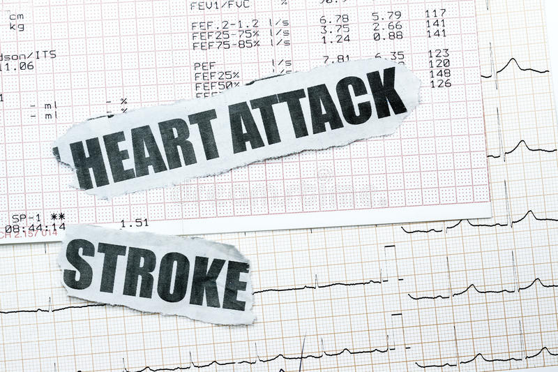 Download Heart Attack And Stroke Royalty Free Stock Images - Image: 13213309
