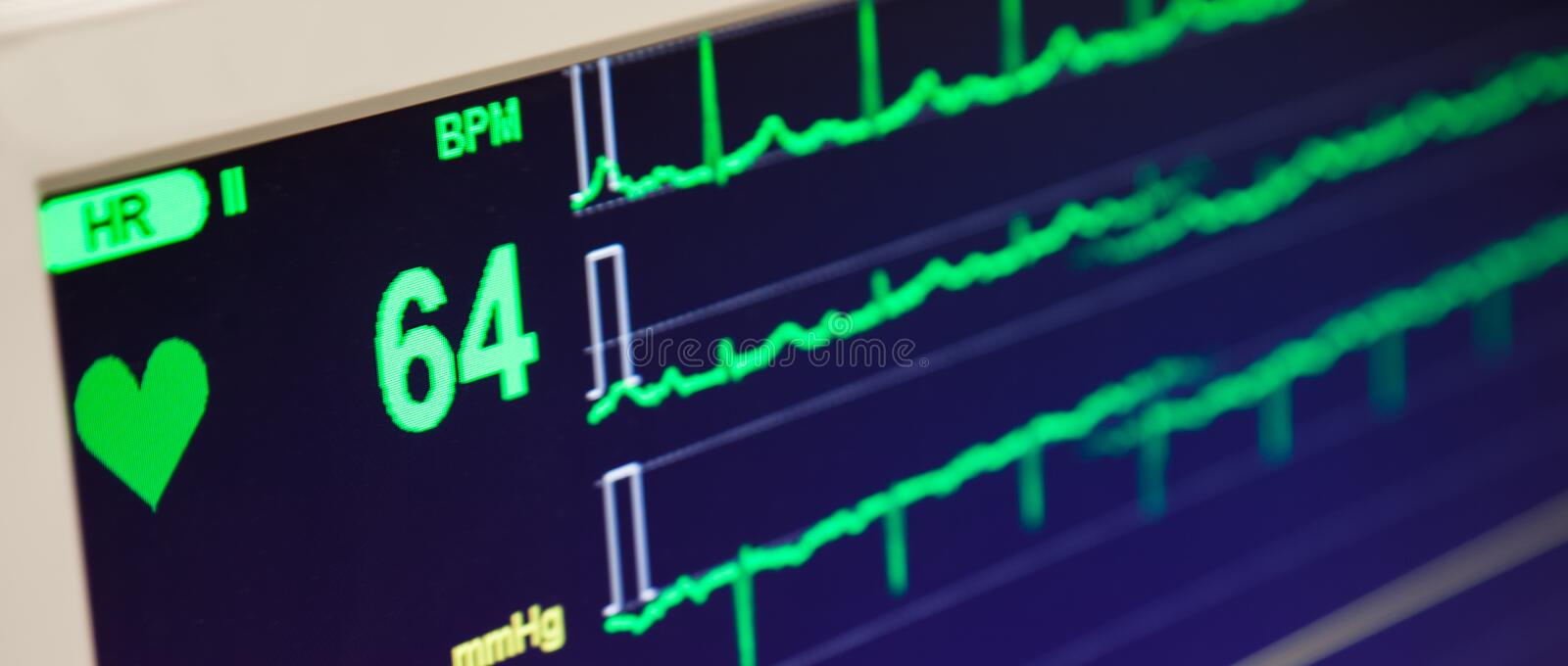 Heart Beat Rate Monitor. A heart beat rate electrocardiogram is displayed on a monitor stock photos