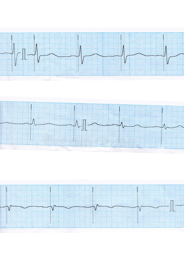 Download Heart. Blue cardiogram stock photo. Image of blue, pulse - 25614766