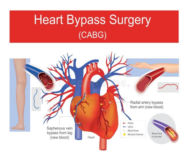 Heart bypass surgery. stock illustration