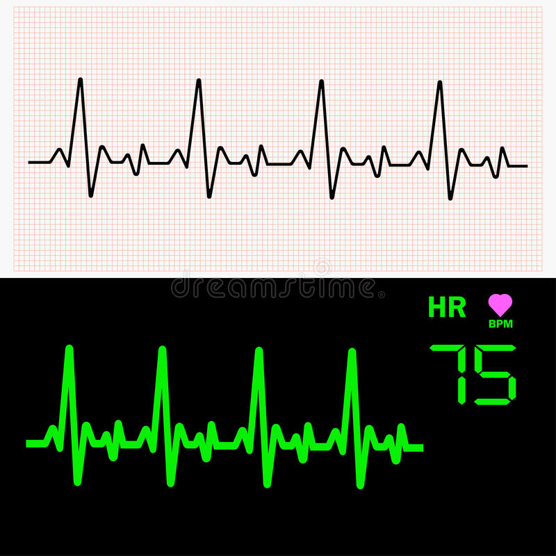 Heart cardiogram waves on graph paper and on monitor. Vector illustration. Heart cardiogram waves on graph paper and on monitor. Vector illustration vector illustration