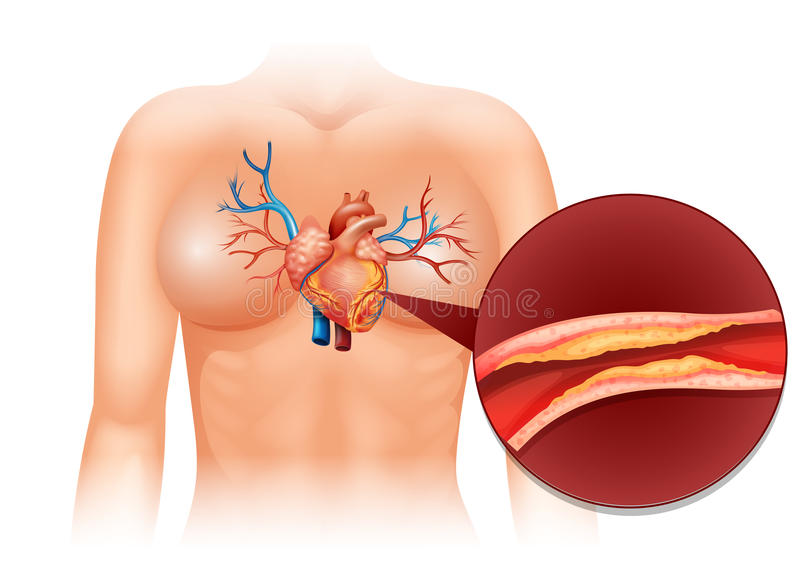 Heart Cholesteral in human royalty free illustration