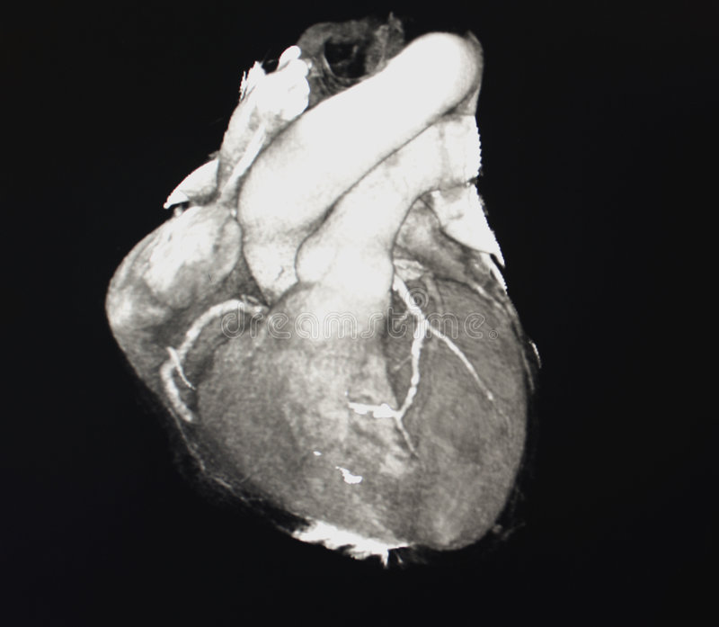 Heart Computed Tomography. Computed Body Tomography of Heart MPR reconstruction - coronarography CT stock photos