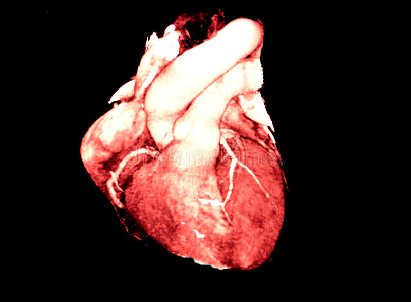 Heart Computed Tomography, CT, radiology. Computed Body Tomography of Heart MPR color view - coronarography royalty free stock image