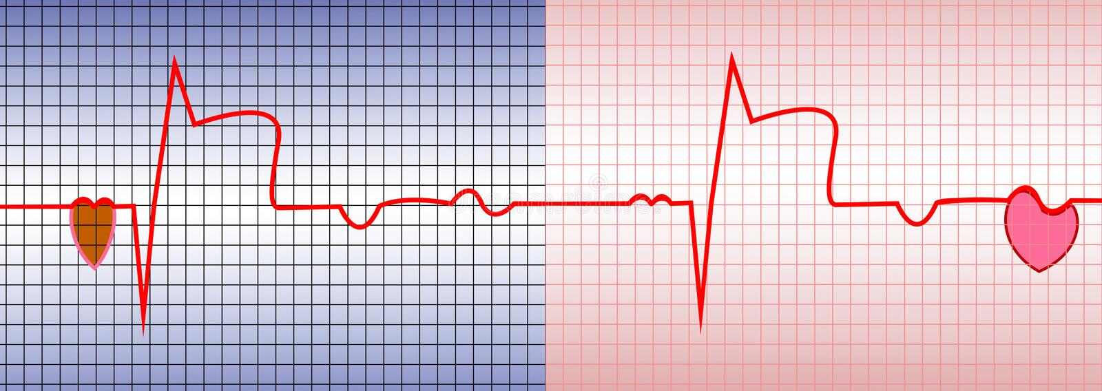 Heart ECG. ECG, acute myocardial infarction, illustration, vector, with two characters of the heart stock illustration