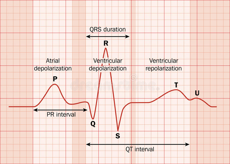 Heart ECG. (EKG) showing the major intervals. Created in Adobe Illustrator. EPS 10 vector illustration