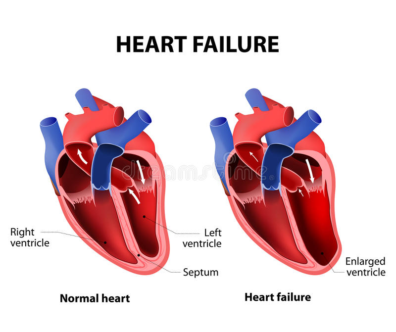 Heart failure stock vector. Illustration of diagram ...