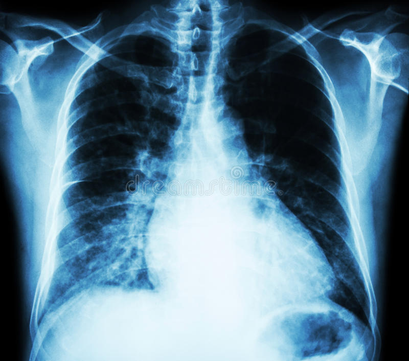 Heart failure ( film x-ray chest PA upright : show cardiomegaly and interstitial infiltrate both lung ) royalty free stock photos