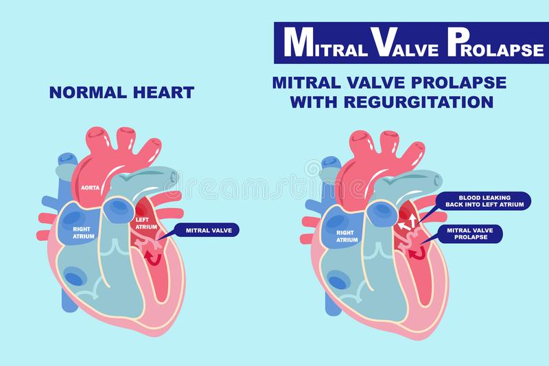 Heart with mitral valve prolapse stock illustration