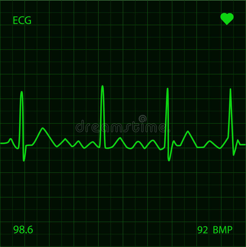 Heart Monitor. Green Heart Monitor medical display vector illustration