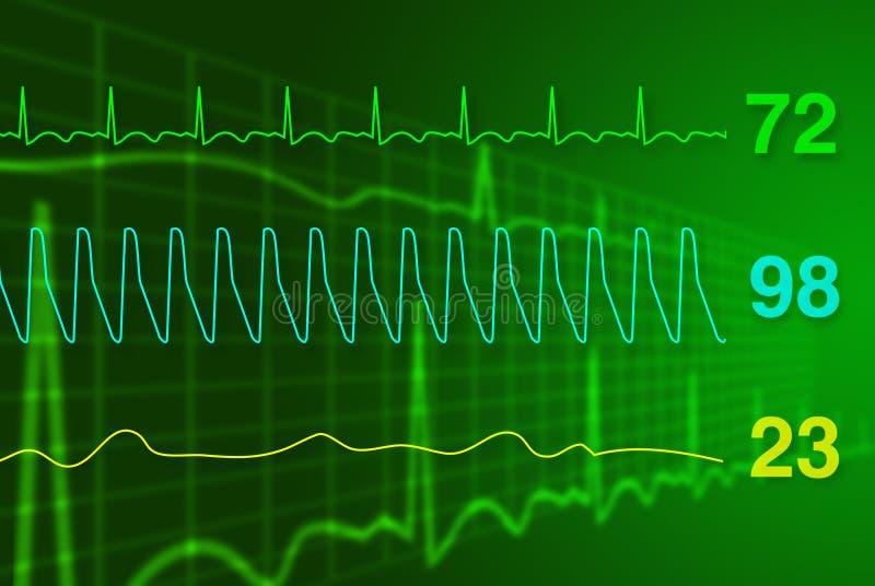 Heart monitor. Raster illustration showing concept of heart monitor royalty free illustration