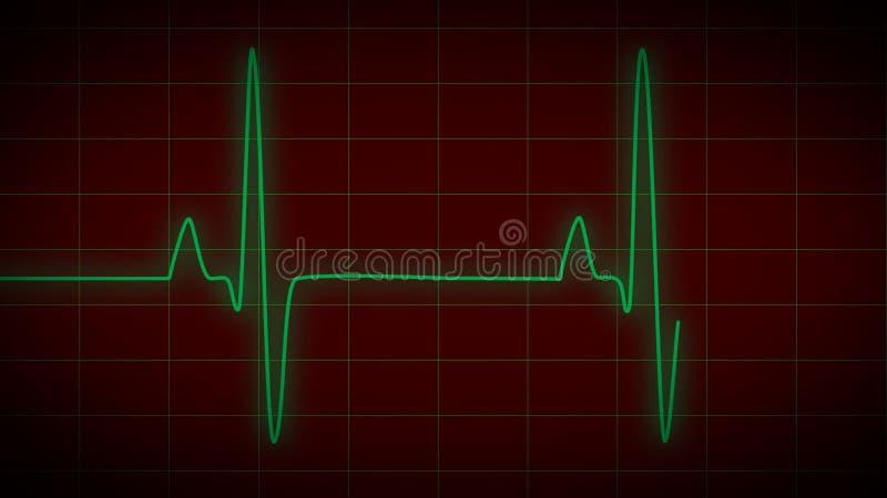 Heart monitor ekg stock video illustration of hospital 40801075 ccuart Choice Image