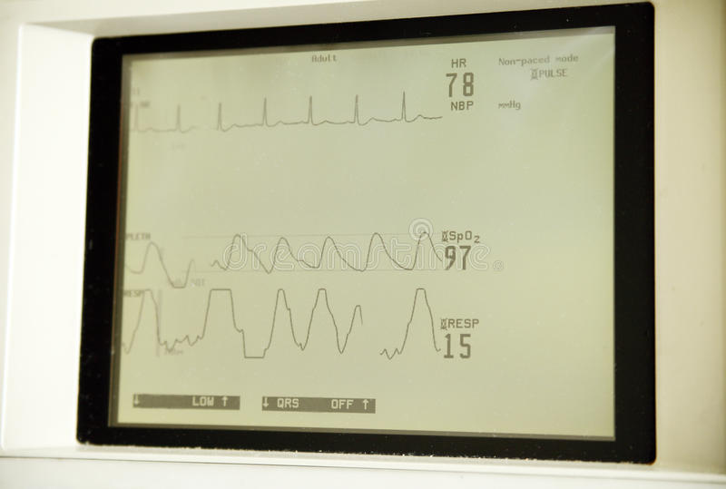 Download Heart monitor screen stock image. Image of clinic, healthcare - 14707195