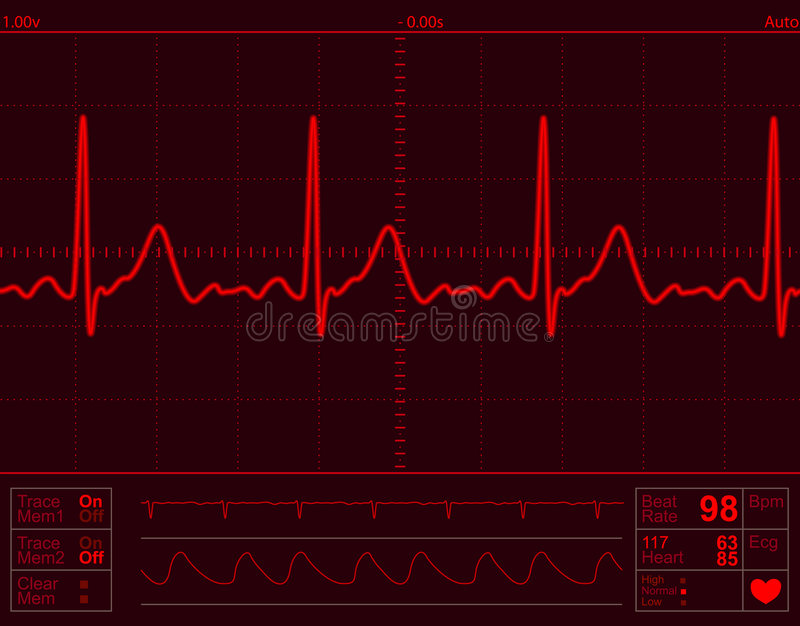 Heart monitor screen. With normal beat signal royalty free illustration