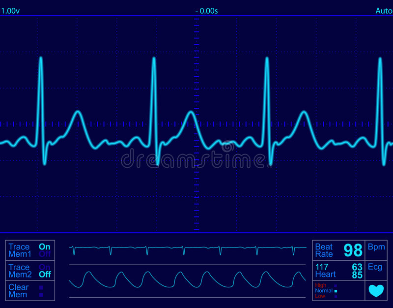 Download Heart monitor screen stock vector. Illustration of technology - 4974635